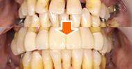 歯周病治療イメージ写真