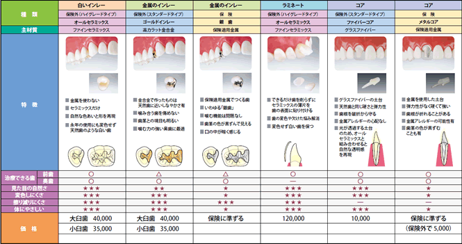 インレー(つめもの)・ラミネート・コア料金表