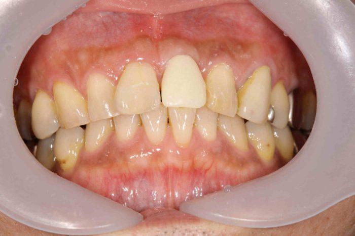 仮歯の状態です